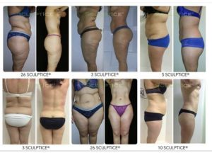 body sculpting before and after